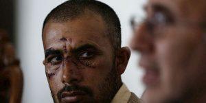 Επίθεση εναντίον Πακιστανών στις Αχαρνές